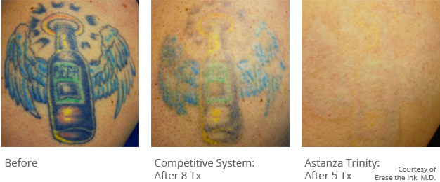laser tattoo removal in north austin texas