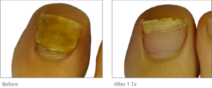 toenail fungus before and after